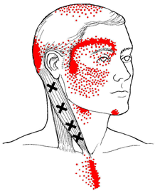 Trigger Point Therapy (Neuromuscular Technique)